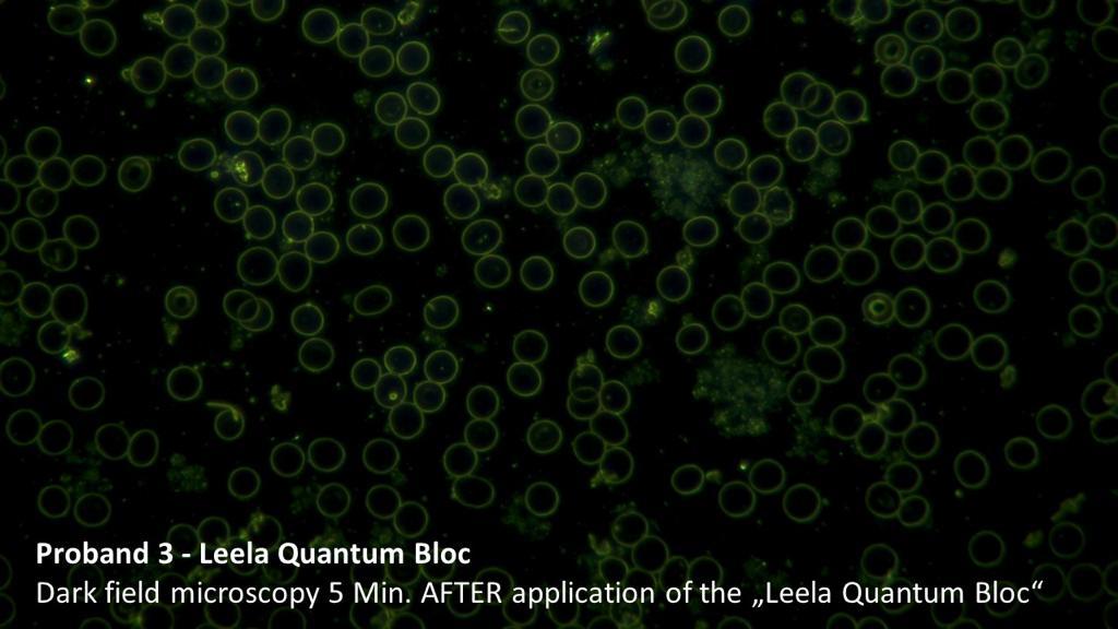 quantum danach